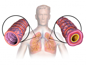 ASTHMA LUNG