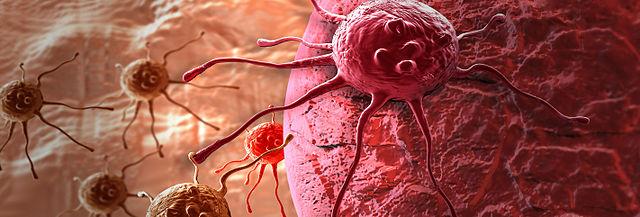 CANCER IMAGES
