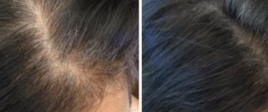 GRAY-HAIR-RM4