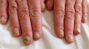 NAIL INFECTION1