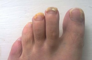 NAIL INFECTION_1
