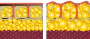FATTY CELLS